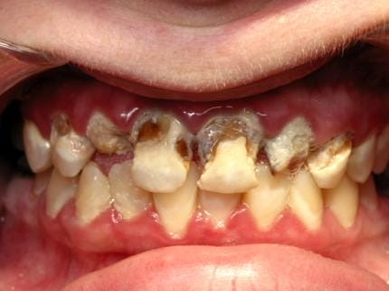 Families Advised To Watch For Meth Mouth