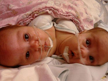Oklahoma Twins Remain In Critical Condition