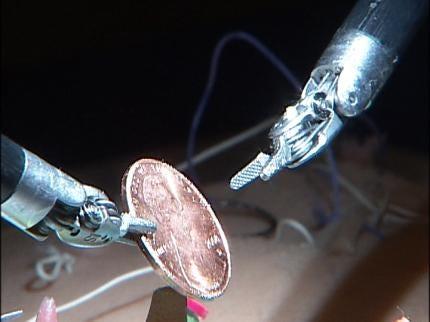 Medical Robot Helps Treat Tulsa Patients