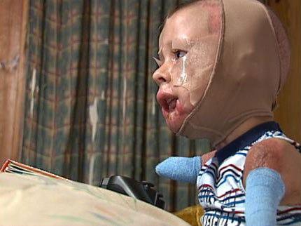 Little Leaguers Play Ball To Raise Funds For Oologah Meningitis Survivor