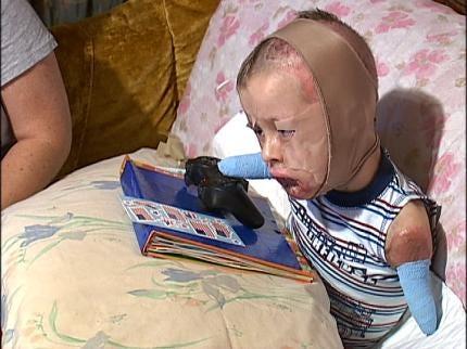 Jeremiah Mitchell Adjusting To Life After Meningitis