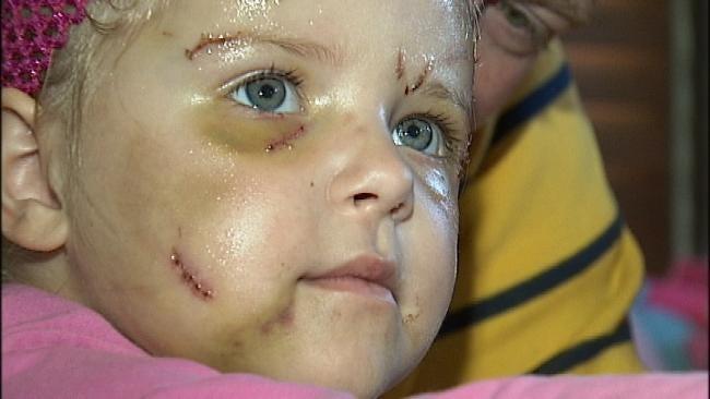 Brutal Pit Bull Attack Injures Vinita Toddler