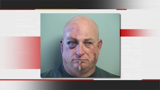 Collinsville Police: Man Arrested For Nearly Biting Off Victim's Finger