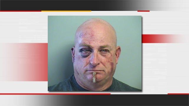 Second Arrest Made In Collinsville Finger-Biting Incident