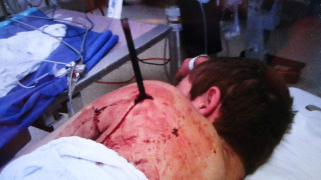 Delaware County Teen Recovering After Being Shot With Arrow [Graphic Picture]
