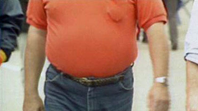 Two-Thirds Of Oklahomans Could Be Obese By 2030, New Study Says