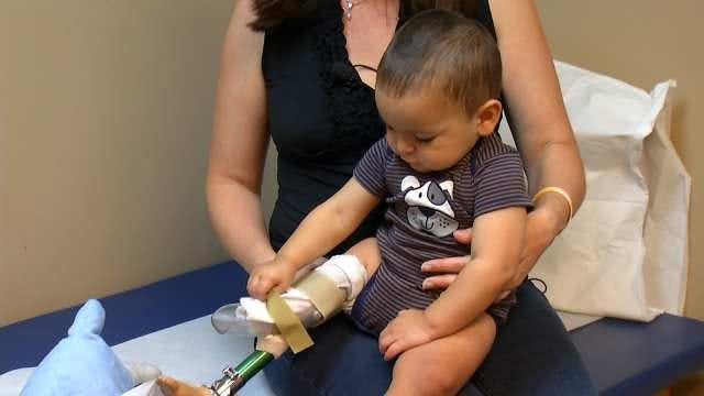 Broken Arrow 14-Month-Old Learning To Walk With Prosthetic Leg
