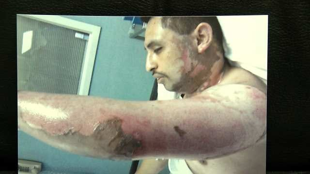 Claremore Man Says DA Took 5 Months To Charge Co-Worker Who Burned Him