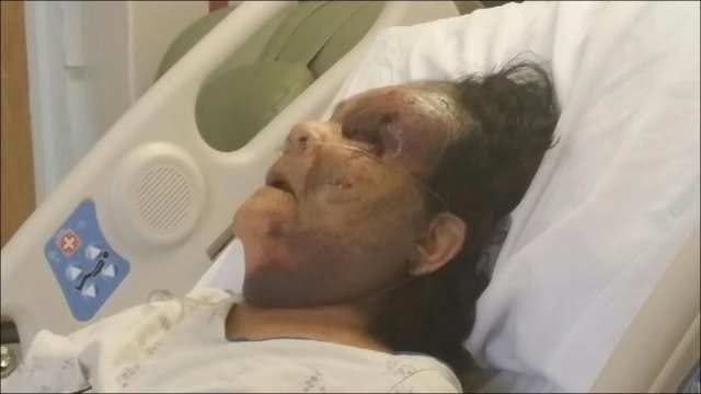 89-Year-Old Tulsa Woman Recovering After Being Hit By Car