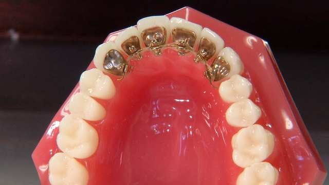 Tulsa Orthodontist Sees More Adults Seeking Braces