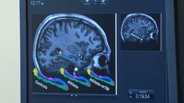 TU Concussion Study Shows Memory Section Of Brain Smaller In Football Players