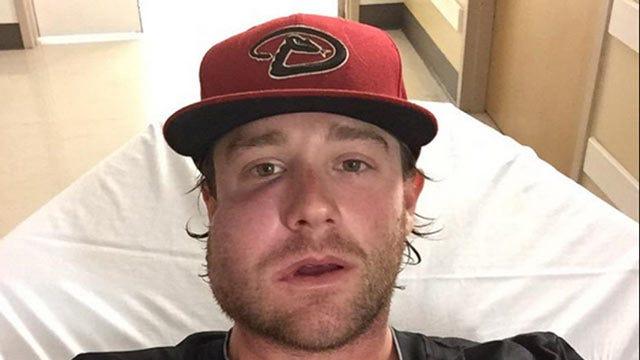 Former Broken Arrow Baseball Star Struck In Face By Line Drive