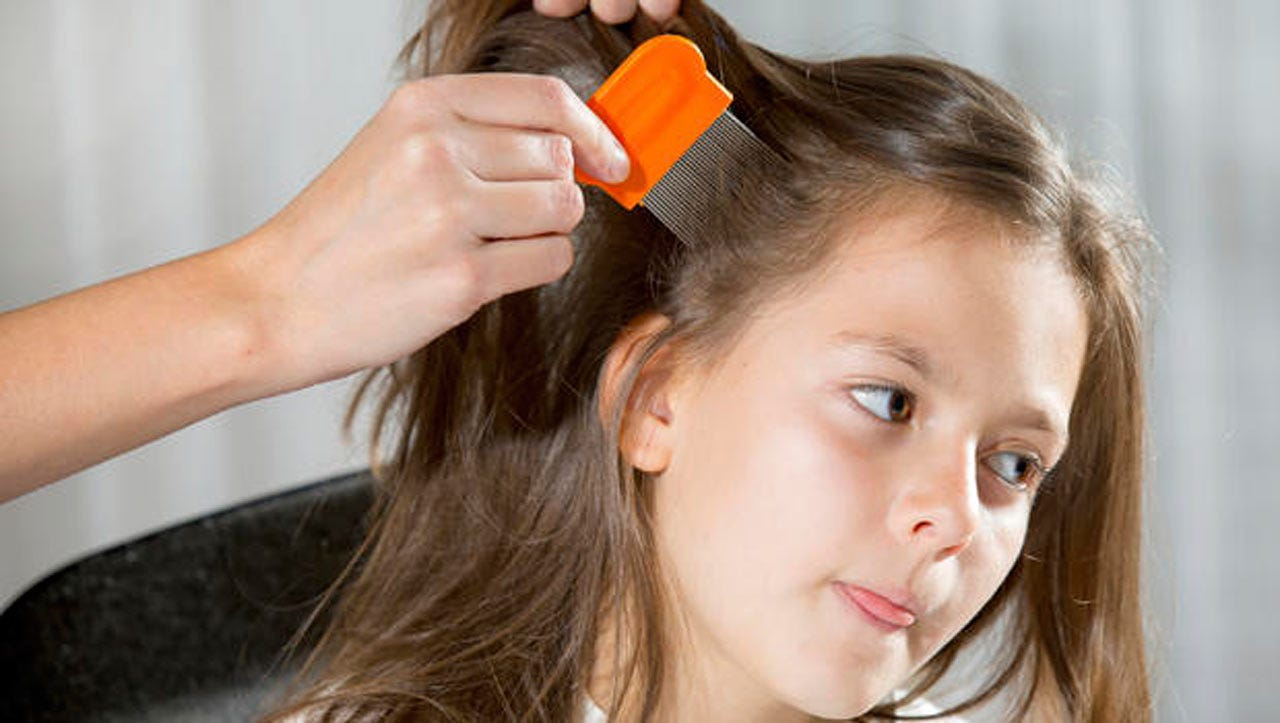 Study: Head Lice Resistant To Common Treatments