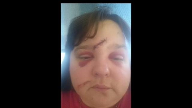 Tulsa Woman, Stabbed More Than 15 Times, Tells Story Of Survival