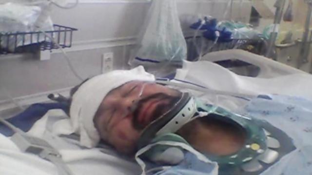 Tulsa Thieves Steal Wallet Of Near-Fatal Crash Victim, Police Say