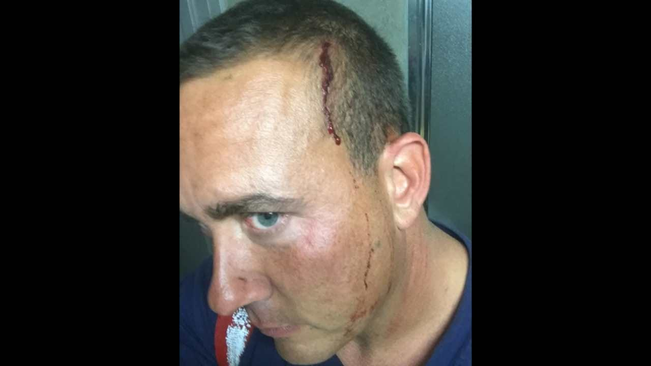 Tulsa Firefighter Recovering After Being Attacked Trying To Save Man