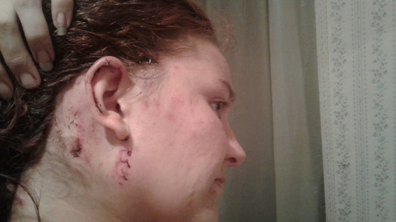 Creek County Woman Mauled By 3 Dogs Seeks Charges
