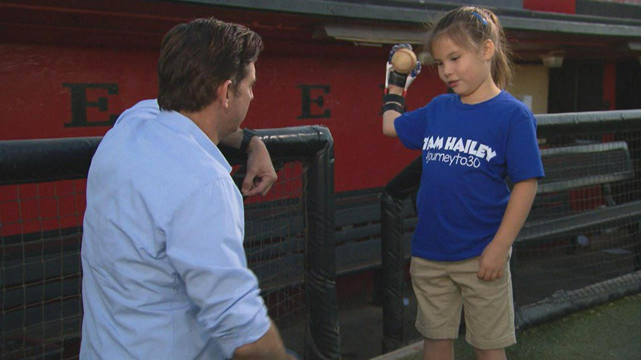 7-Year-Old With 3-D Printed Hand To Throw Out World Series Game 4 First Pitch