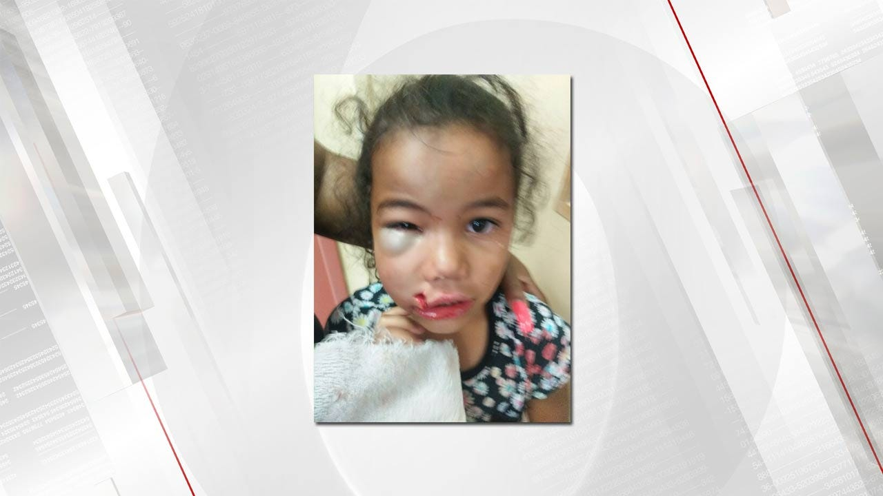 Girl Severely Injured; 2 Muskogee Daycare Employees Suspended