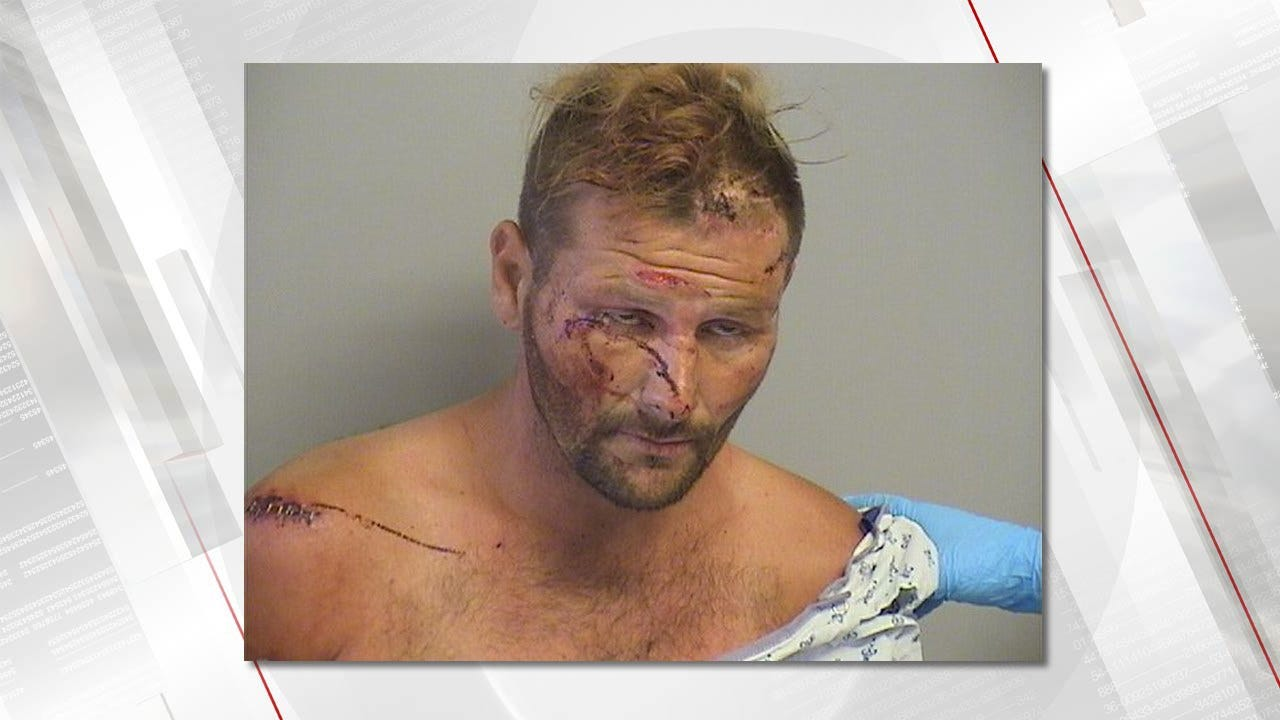 Man Allegedly Injures Himself Multiple Times To Delay Going To Jail