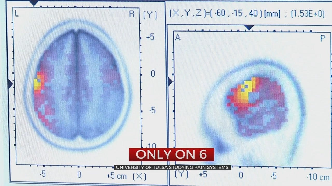 University of Tulsa Searches For Chronic Pain Cure