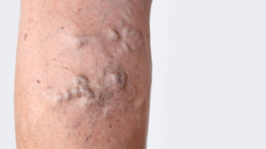 Beyond the Legs: Where Varicose Veins Form in the Body