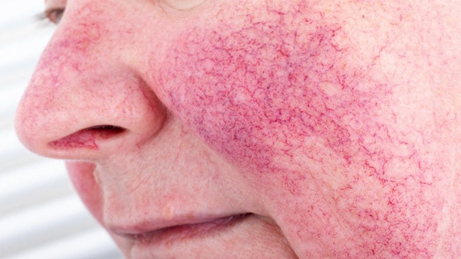 How Different Rosacea Types Are Treated, According to a Derm