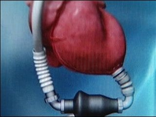 Device helps keep heart pumping