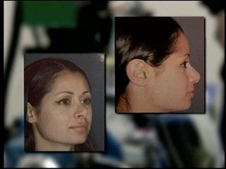 Woman fixes undesired plastic surgery results