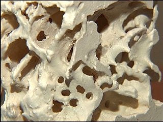 Prevent osteoporosis and arthritis