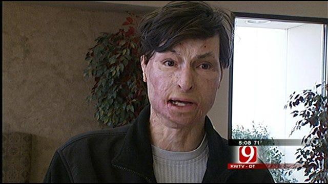 Man Walks, Flies Again After Doctors Said He Wouldn't