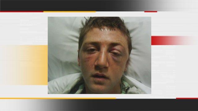 Del City Police Surprised Man Survived 'Heinous, Brutal' Beating