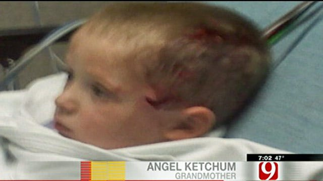 Dog Attack Outrages OKC 3-Year-Old's Family