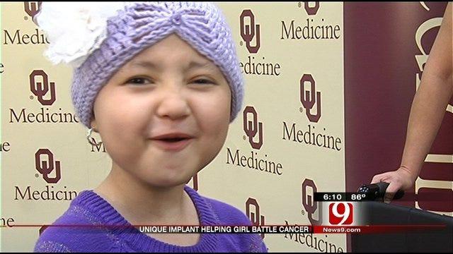 OKC Surgeons Use Unique Implants To Save Young Cancer Patient's Leg