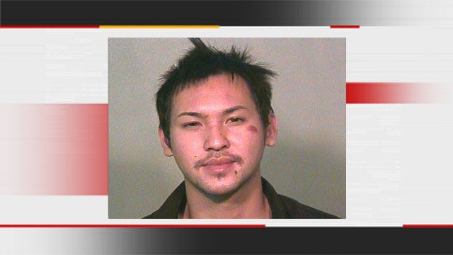 Suspect's Bite May Have Permanently Scarred Bricktown Bouncer
