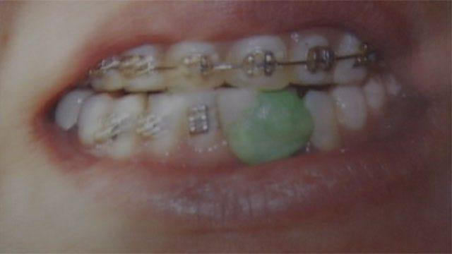 Authorities Warn Of Fake Dentist Botching Dental Work In OKC