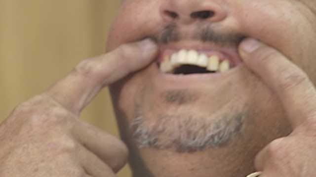 Patient Of Fake Dentist In OKC Speaks Out