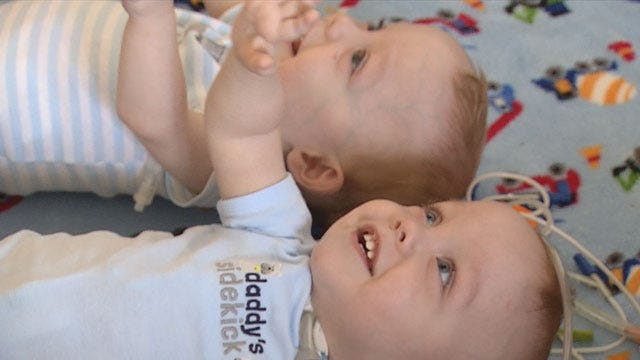 Now Separated, Conjoined Twins Go Home, Require Constant Care