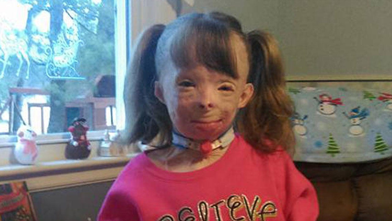 Girl Who Lost Family In Fire Has One Christmas Wish