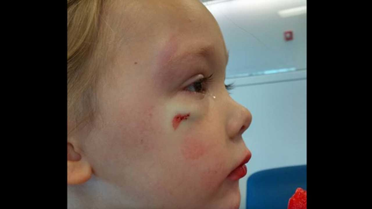 Mom Scolds Hospital Staffer For Comment To Her Injured 4-Year-Old