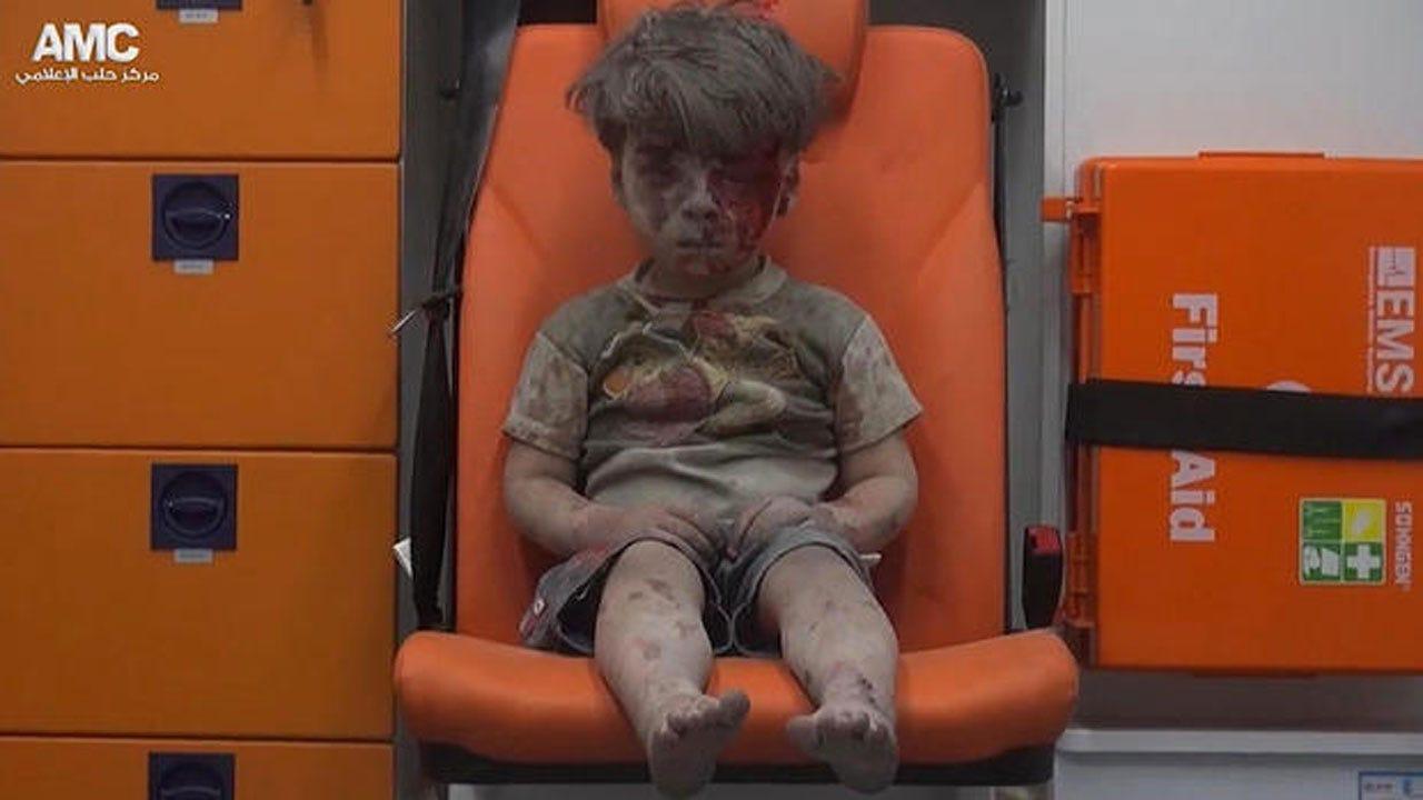 Gripping Image Of Boy In War-Torn Syria Draws Eyes Worldwide