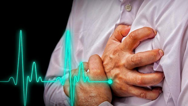 Study: Heart Attack Patients Getting Younger, Fatter