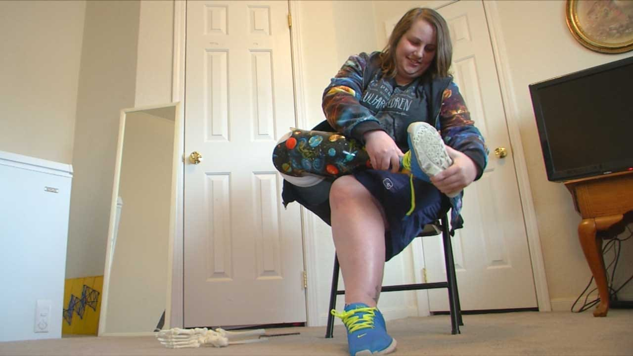 Oklahoma Cancer Survivor Uses Amputated Foot To Inspire Others