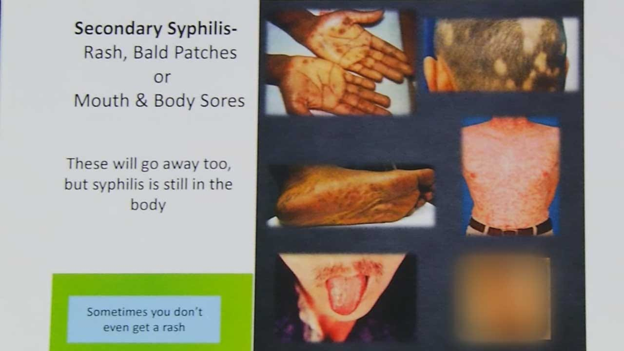 Health Department Reports Syphilis Outbreak In OK Co.