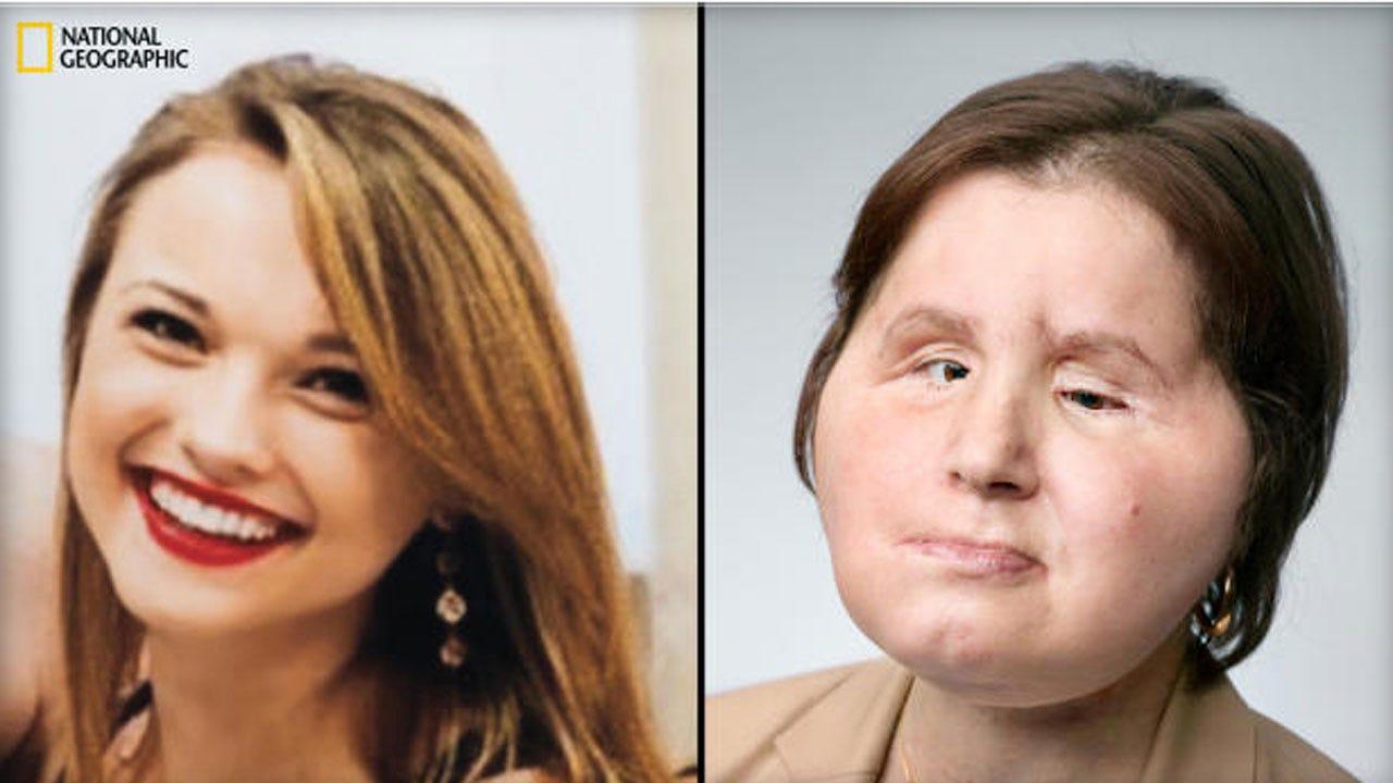 Suicide Survivor Becomes Youngest Face Transplant Recipient In U.S.