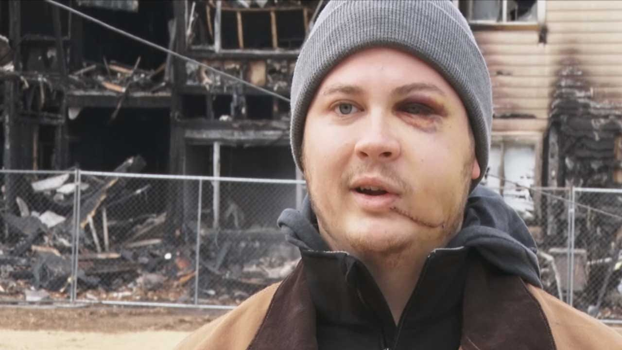 Norman Man Recalls Fall From Third-Story Apartment In Attempt To Escape Fire