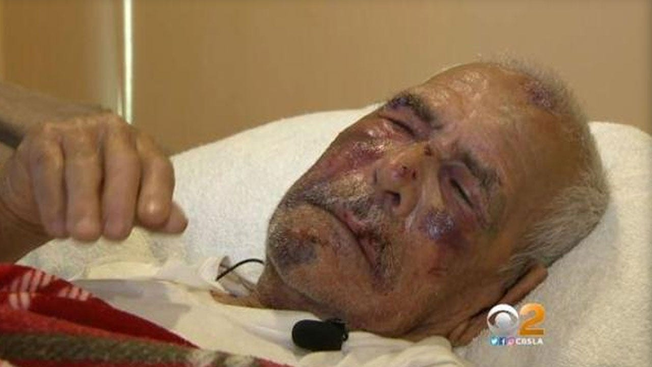 """92-Year-Old Man Beaten, Told """"Go Back To Your Country"""""""