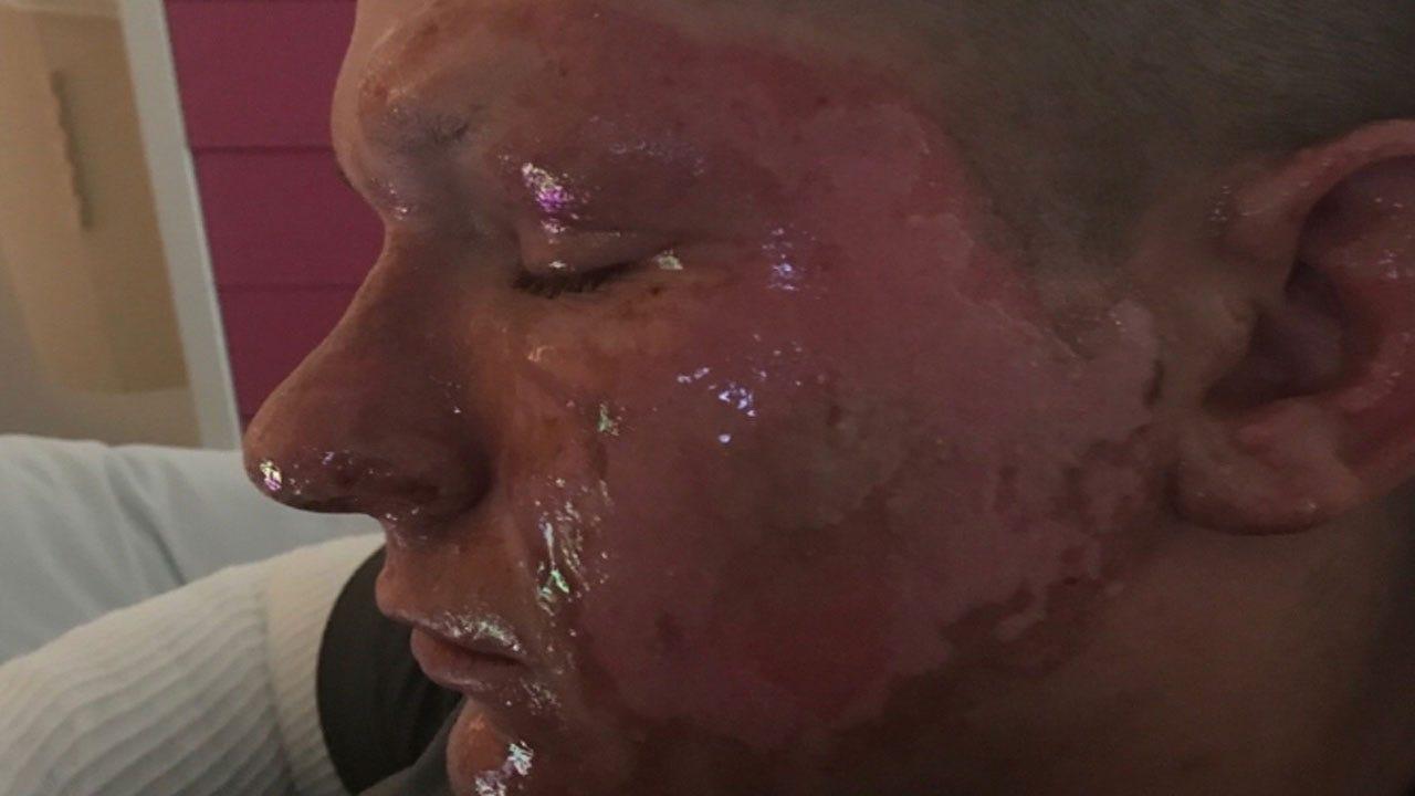 Giant Hogweed Sends Virginia Teen To Hospital Burn Unit