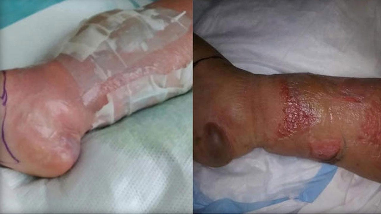 Woman Almost Loses Leg After Getting Infection She Blames On Salon Procedure