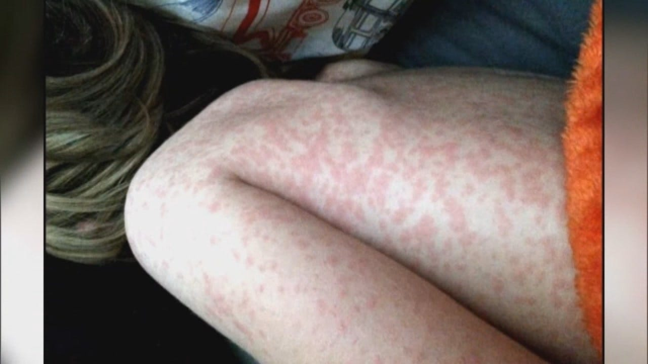 Misinformation Online Helps Fuel Measles Outbreak, Experts Say